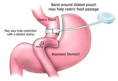 Bariatric Revision Los Angeles Stomach Surgery Rancho Cucamonga